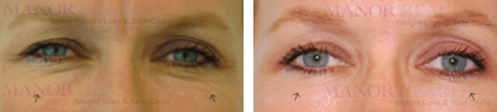 skin peel rejuvenation treatment before after by Manor Health Leeds Horsforth