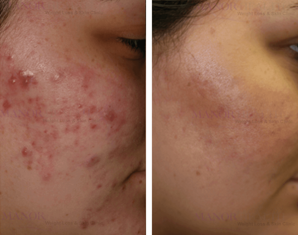 acne skin peel rejuvenation treatment before after by Manor Health Leeds Horsforth