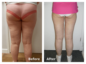 before after ultrasound weight loss by Manor Health Leeds Horsforth