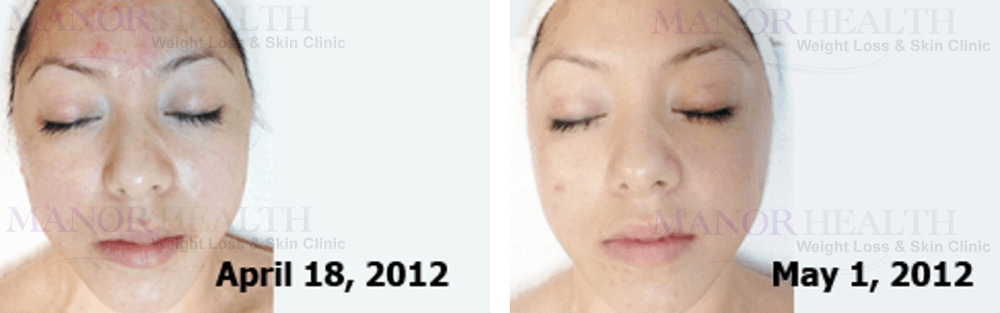 AQ Derma Stamp Treatment Increased collagen and elastin Treatment before after by Manor Health Leeds Horsforth
