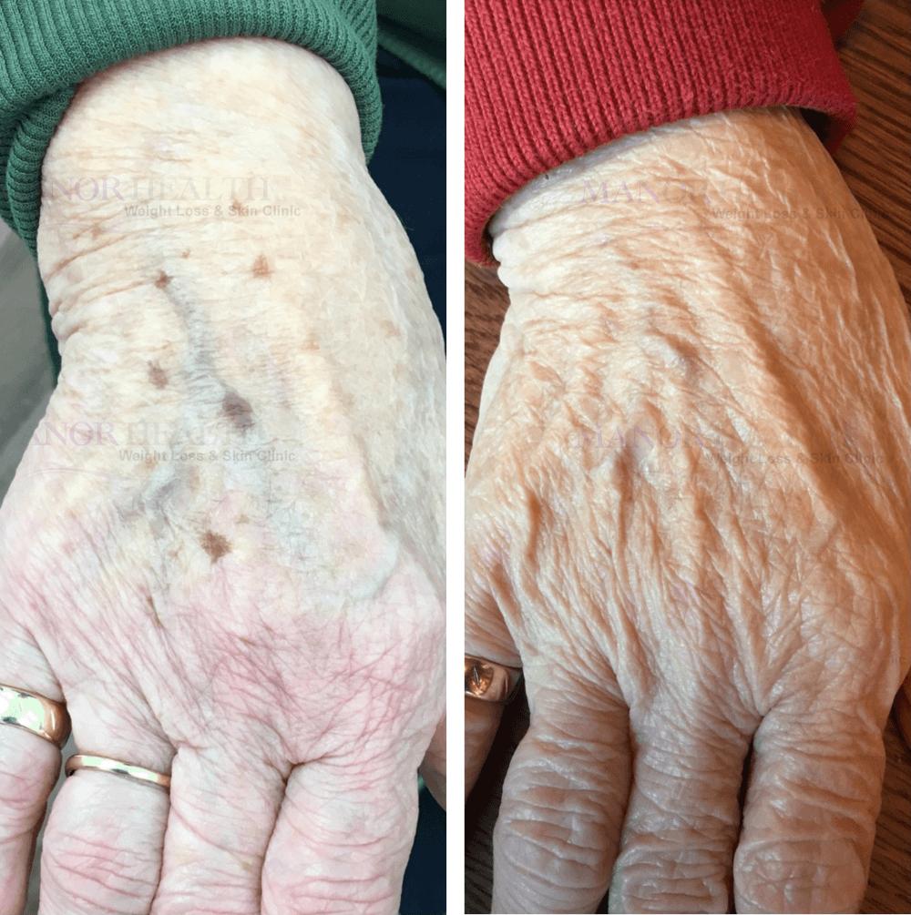 age-spots