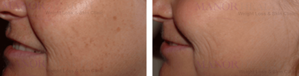 before after skin rejuvenation by Manor Health Leeds Horsforth