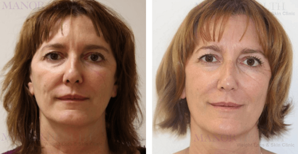 fractional laser rejuvenation skin treatment before after by Manor Health Leeds Horsforth