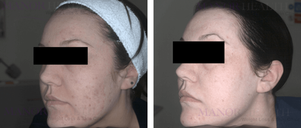 fractional laser rejuvenation skin acne treatment before after by Manor Health Leeds Horsforth