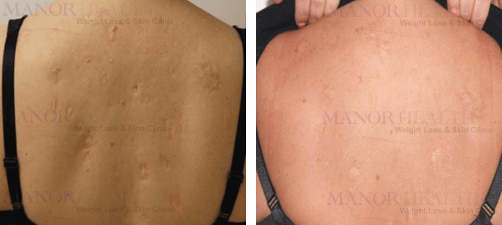 back scars fractional laser rejuvenation skin treatment before after by Manor Health Leeds Horsforth