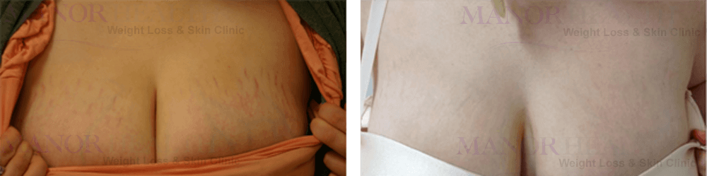 chest fractional laser rejuvenation skin treatment before after by Manor Health Leeds Horsforth