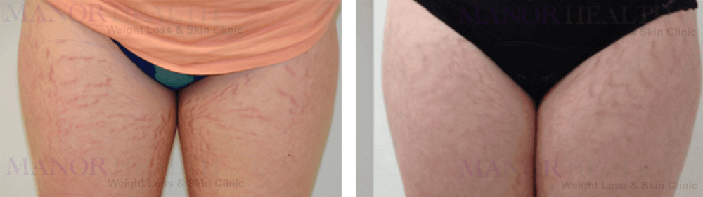 thighs fractional laser rejuvenation skin treatment before after by Manor Health Leeds Horsforth