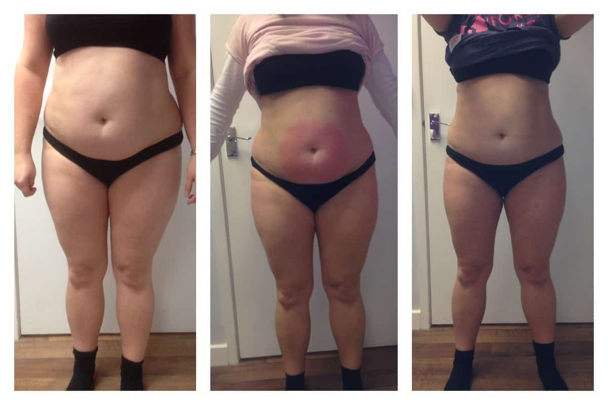 Weight Loss Before After by Manor Health Leeds Horsforth