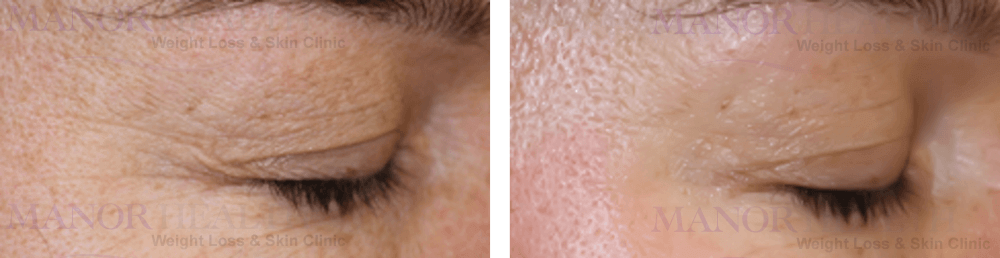 Eyes Skin Tightening Treatment before after by Manor Health Leeds Horsforth