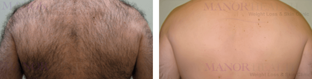 before after back hair removal by Manor Health Leeds Horsforth