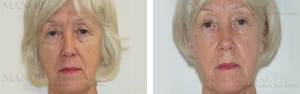 Skin Tightening Treatment before after by Manor Health Leeds Horsforth