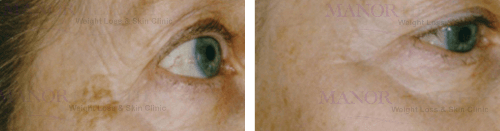 Age Spot Pigment Removal Treatment before after by Manor Health Leeds Horsforth