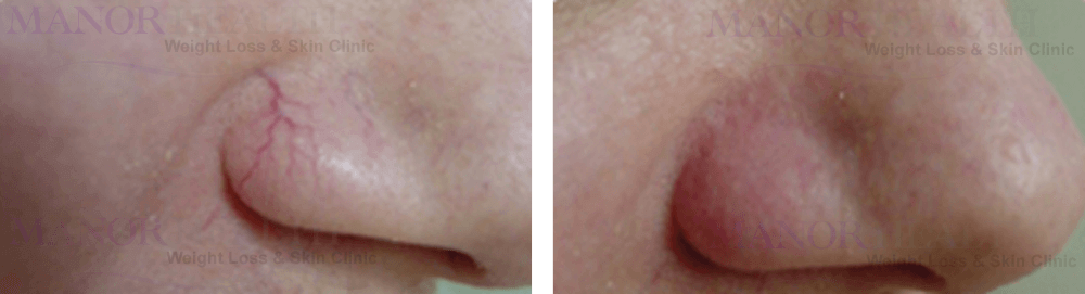Nose Thread Vain Removal Treatment before after by Manor Health Leeds Horsforth