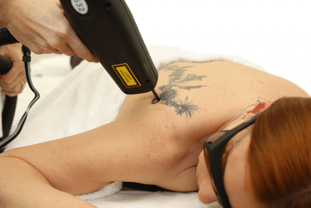 tattoo removal in leeds