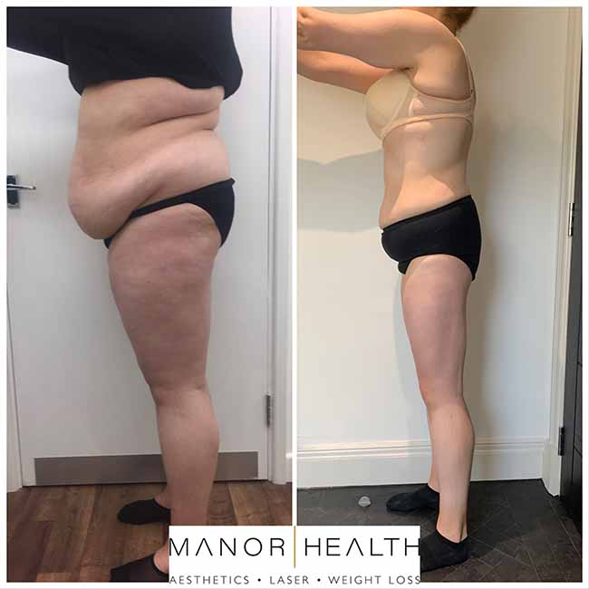 Manor Health Weight Loss Treatment Before and After